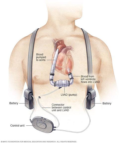 Ventricular assist device (VAD) or mechanical heart pump.