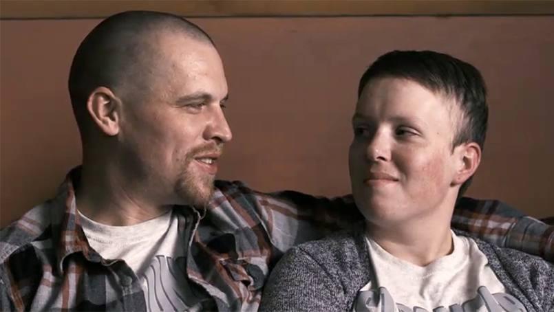 Tyson Cluever after brain cancer surgery.