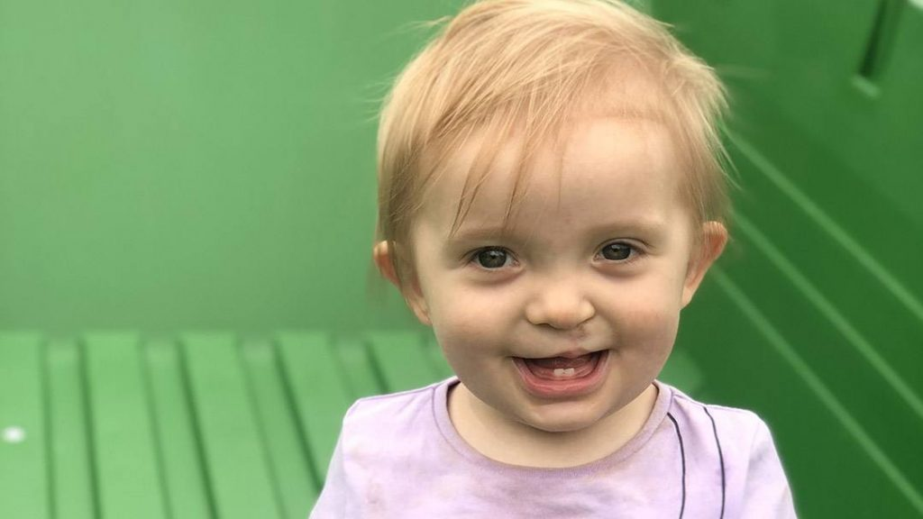 For Rebecca and J Winkowski, learning that their daughter, Everly, would be born with a cleft lip and palate was an unexpected and unnerving discovery. But after meeting a compassionate team of Mayo Clinic physicians committed to Everly's care, those feelings of anxiety and apprehension quickly vanished.